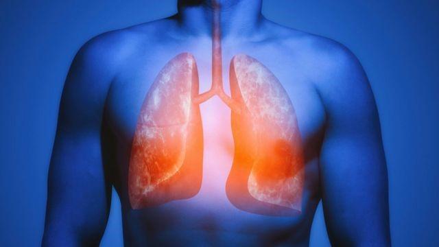 Covid-19 pode deixar problemas crônicos nos pulmões e outros órgãos, como a fibrose pulmonar